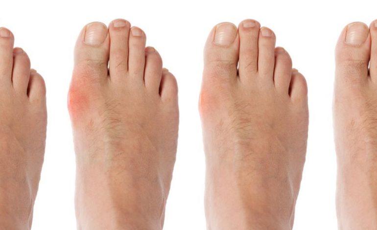leziuni mari ale degetului mare tratamentul artritei virale