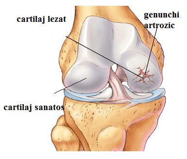 de unde începe artroza articulației genunchiului)