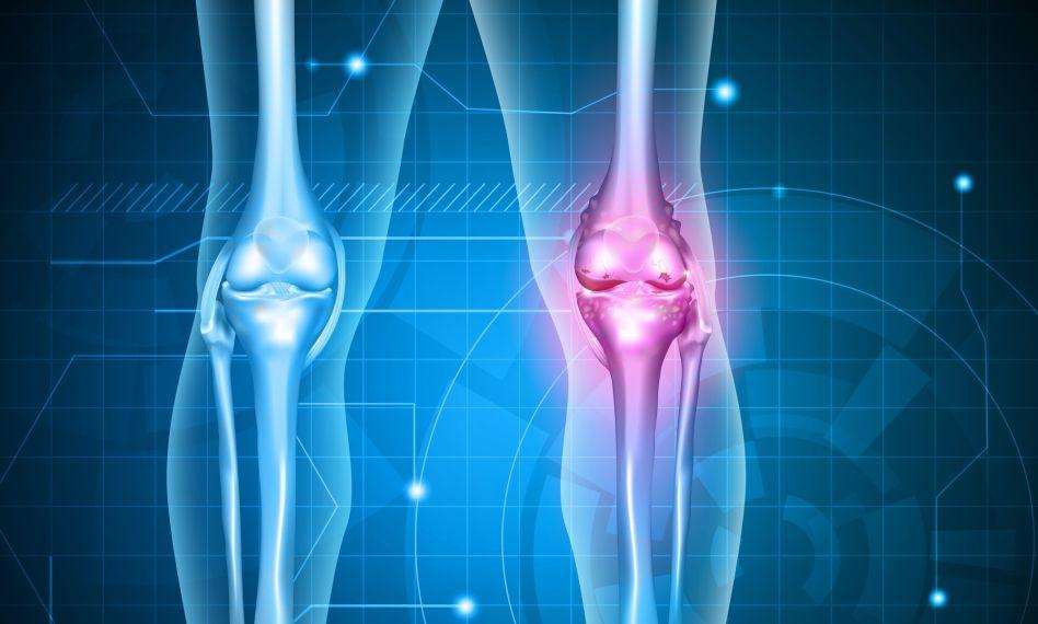 tratarea cu ultrasunete a artrozei genunchiului)