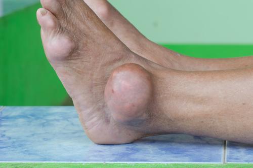 mâini cu artrita guta tratament cu artroza necovertrală