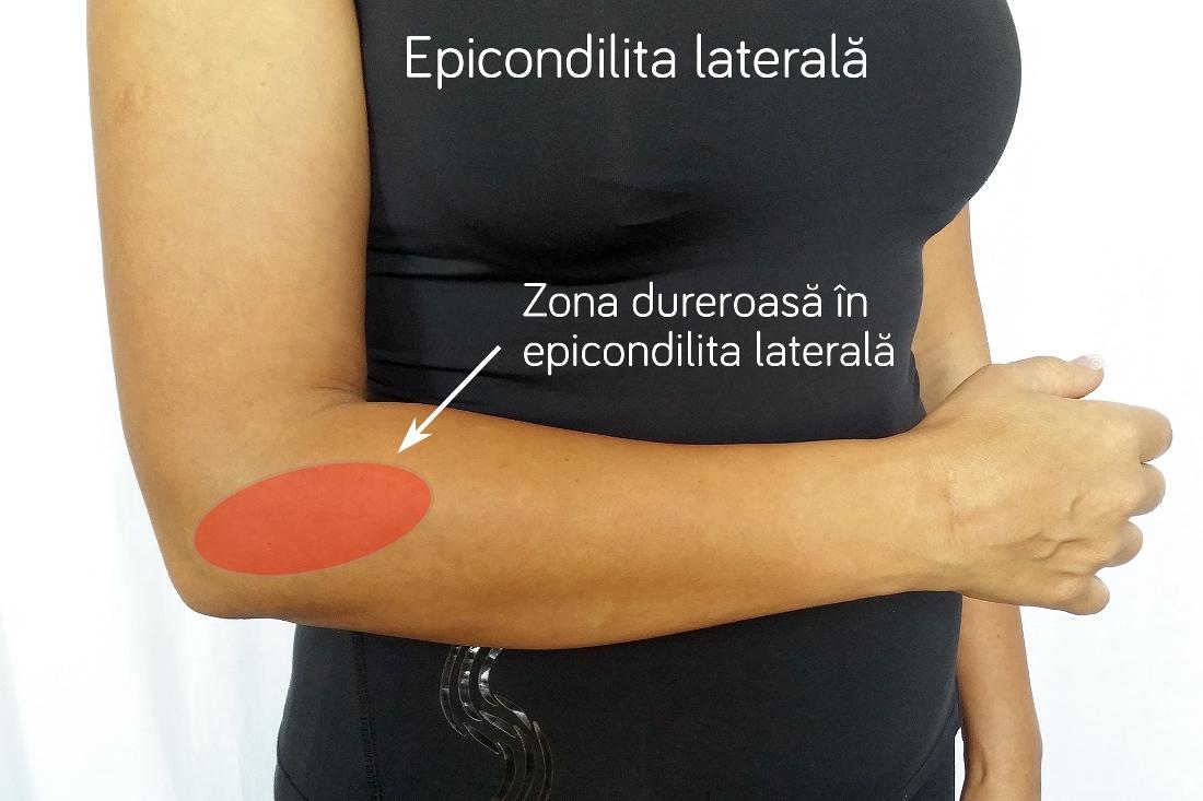 cot epicondilita articulației cotului tratament eficient