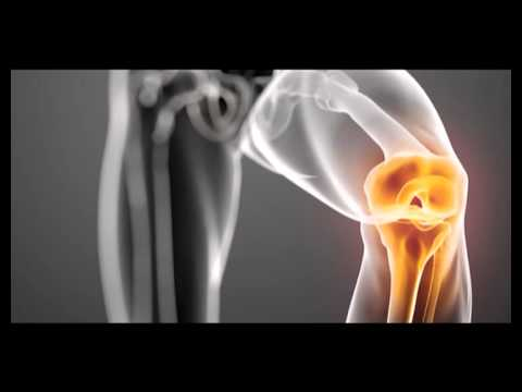 artroza articulației uncovertrale)