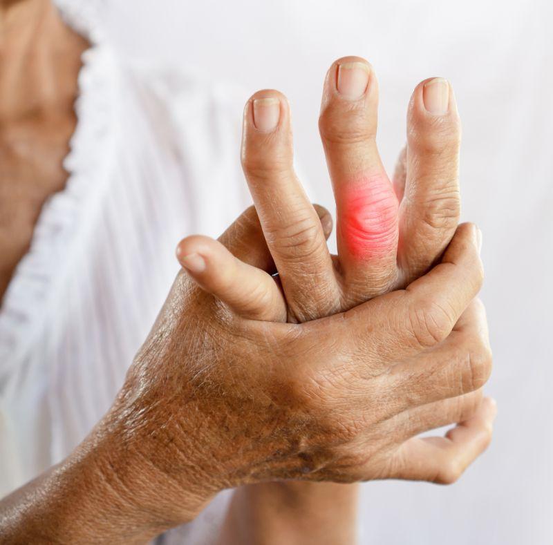 mâini cu artrita guta inflamație cronică a țesutului conjunctiv