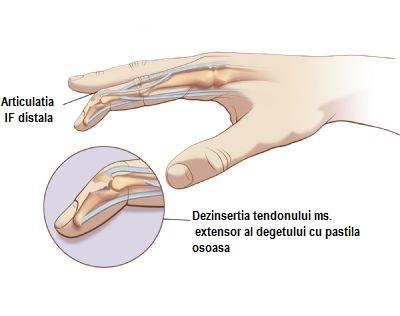 un deget dureros în articulație)
