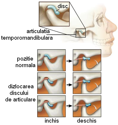 sindromul durerii articulare)
