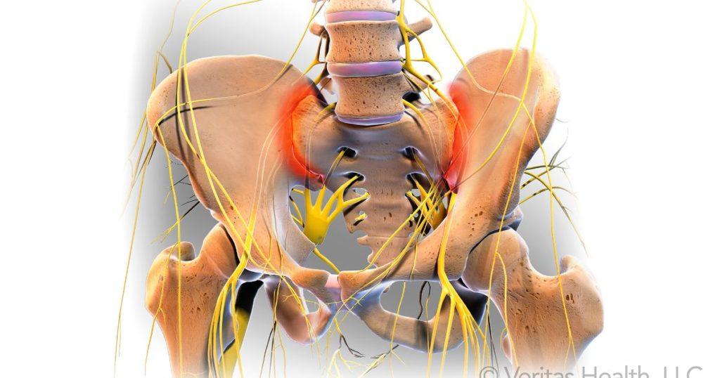 Simptomele Durerii Articulare Sacroiliace, Sacroileita