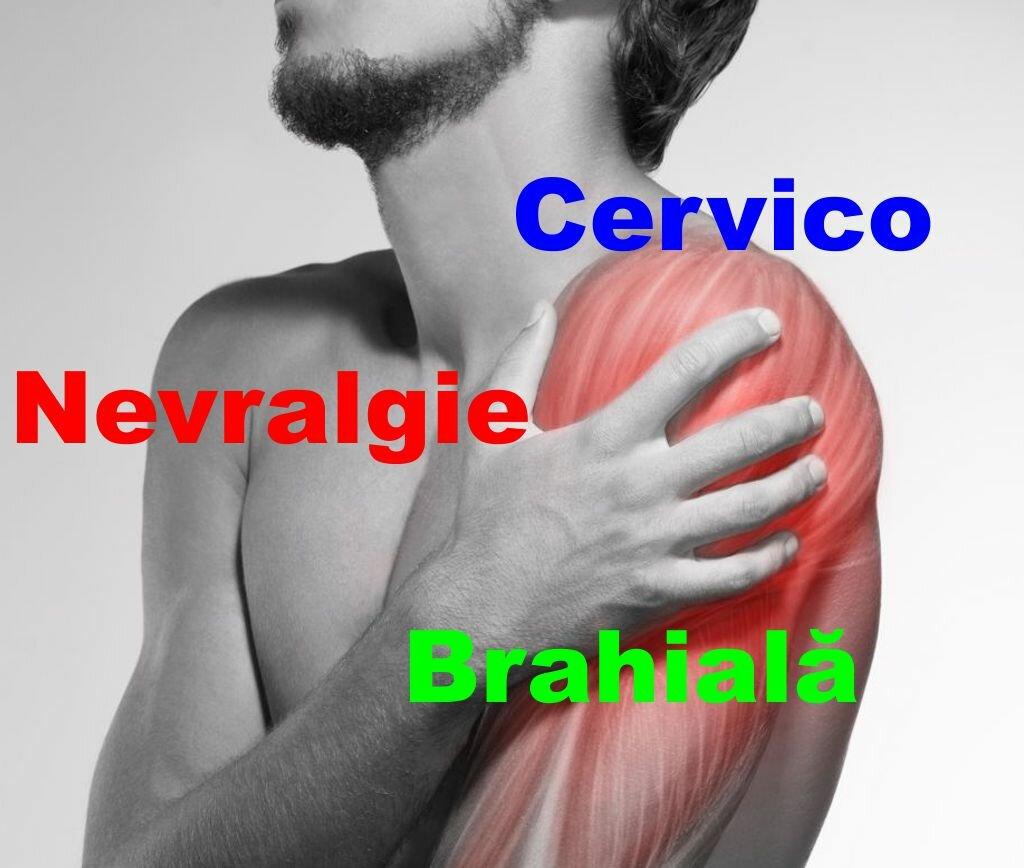 Nevralgia cervico-brahiala - cauze, simptome si tratament | Centrokinetic