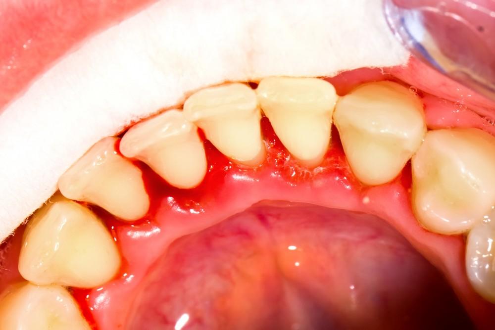 sângerarea gingiilor dureri la nivelul articulațiilor