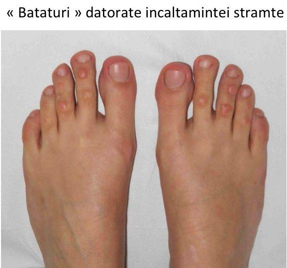 Artroza degetelor de la picioare ale tratamentului picioarelor
