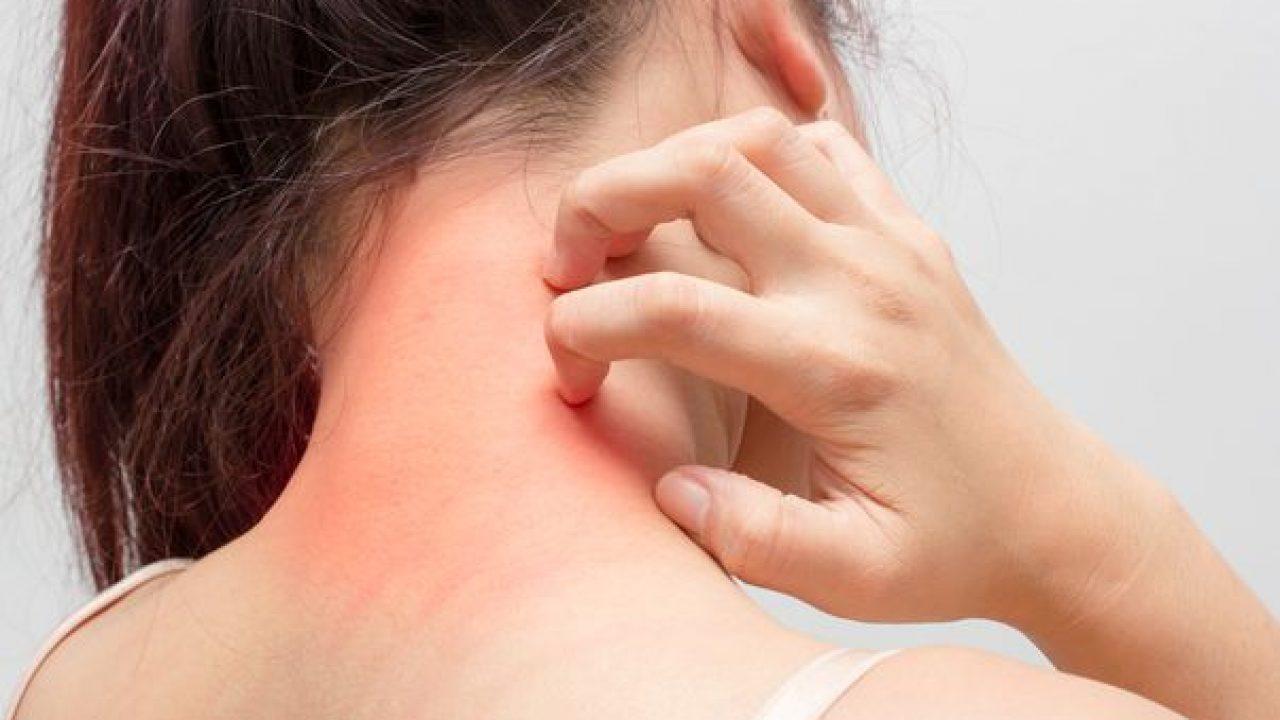 inflamație purulentă a pielii în articulații)