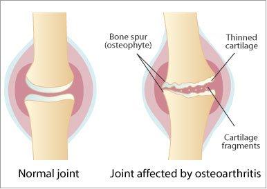 artroza articulațiilor costale transversale