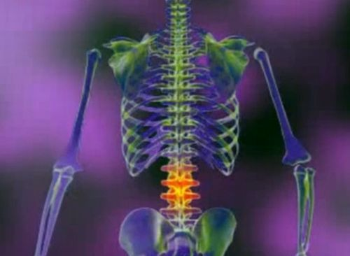 dacă articulațiile și coloana vertebrală sunt foarte dureroase)