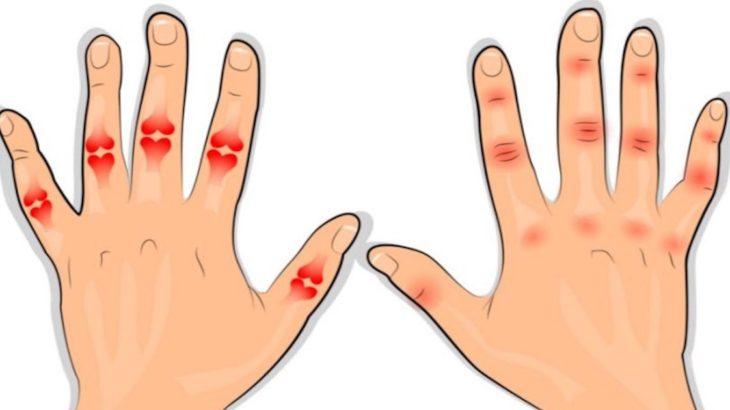 articulațiile degetelor au început să doară