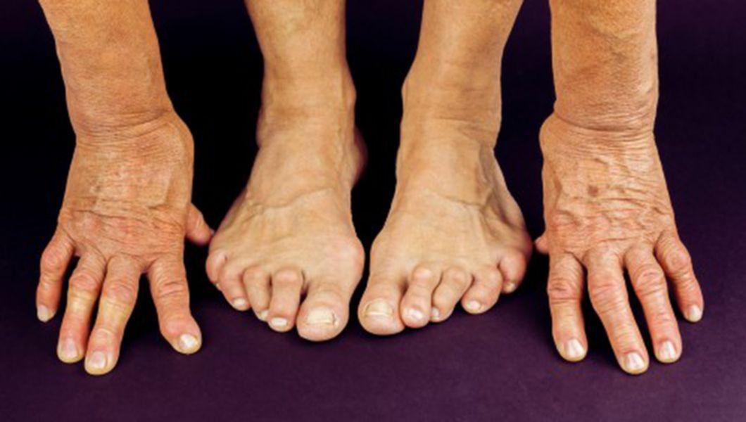 vindecați articulațiile cu artrita reumatoidă)
