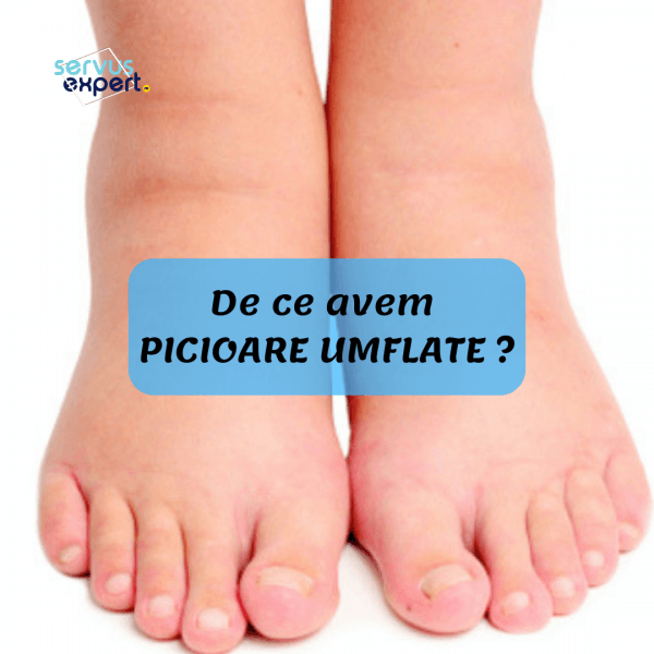 articulația umflată pe boala piciorului