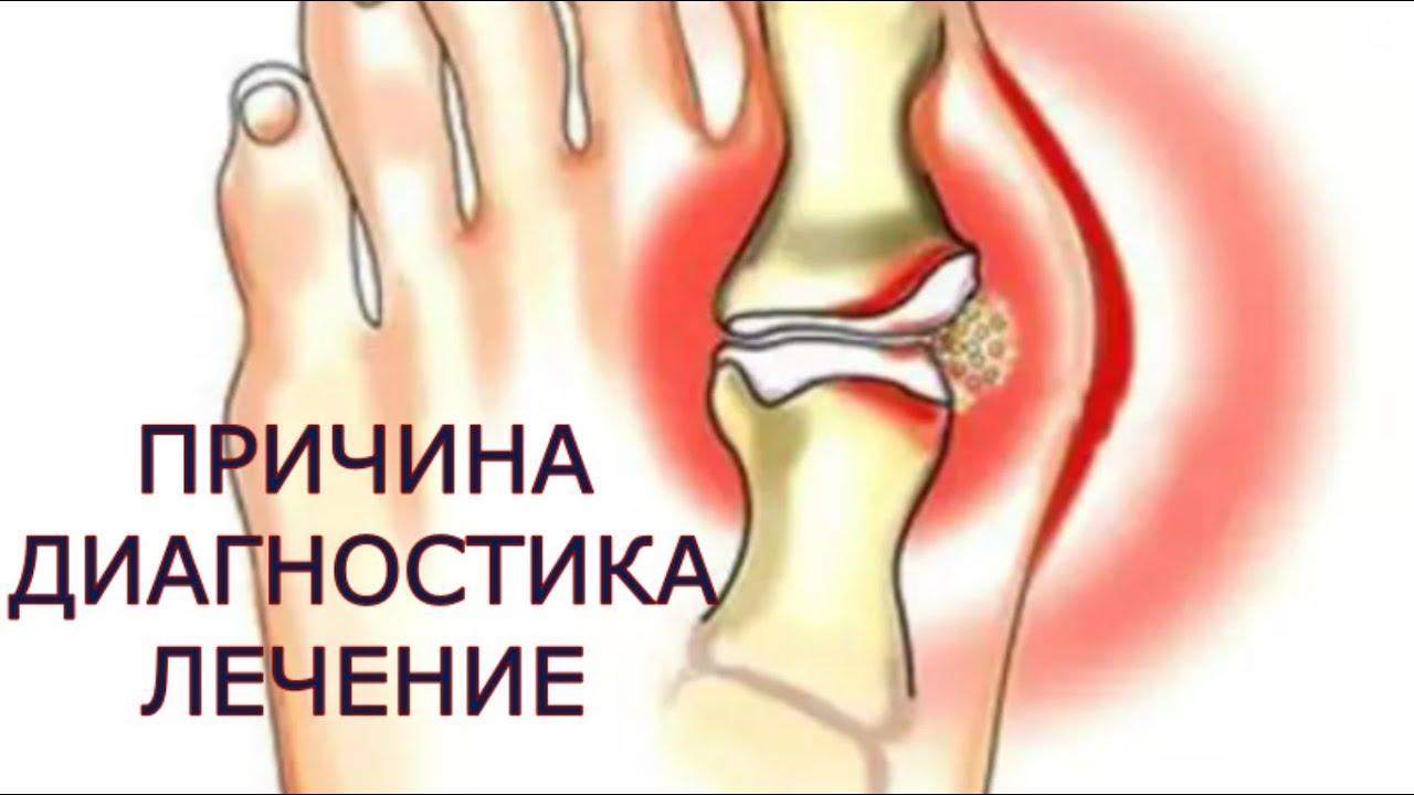 dureri articulare datorate pancreasului inflamat tratamentul articulațiilor degetului mare