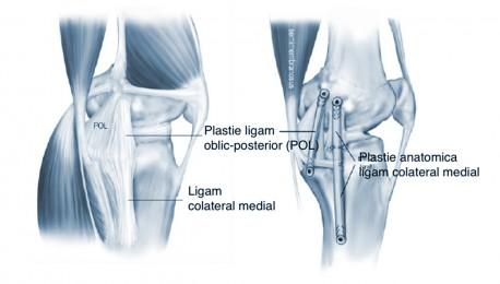 leziuni ale ligamentului medial al genunchiului