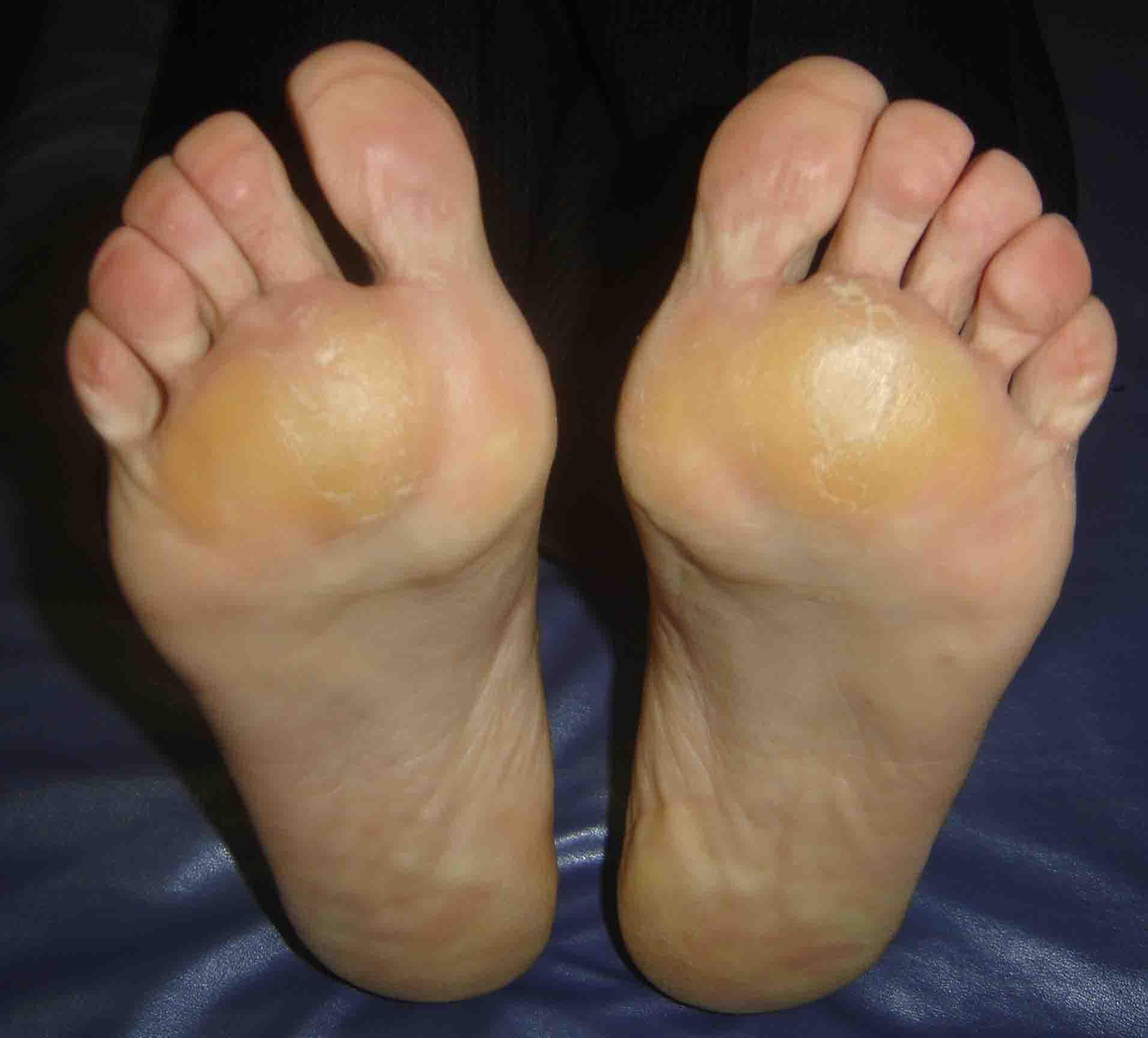 tratamentul artrozei piciorului și degetelor de la picioare