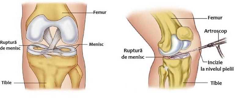 leziune de menisc în articulația genunchiului