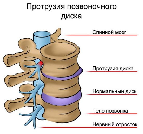 ce medicamente pentru a trata osteochondroza lombară)