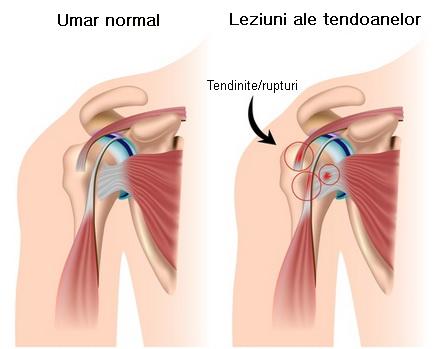 durere în articulația umărului în timpul palpării)