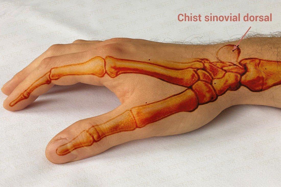 Guta la articulatiile degetelor de la mana, Cum să tratezi durerea în articulațiile degetului mare