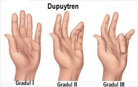 tratamentul osteomielitei articulare a degetelor)
