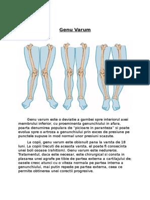 piciorul plat și artroza genunchiului îngrijire medicală pentru leziuni ale oaselor și articulațiilor