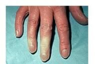 boli ale tesutului conjunctiv al pielii)