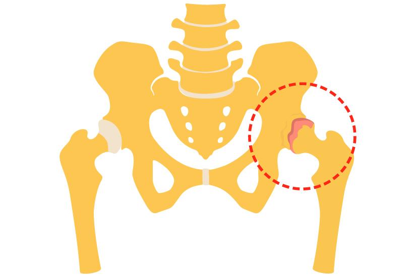 boli ale articulației șoldului și tratamentul acesteia