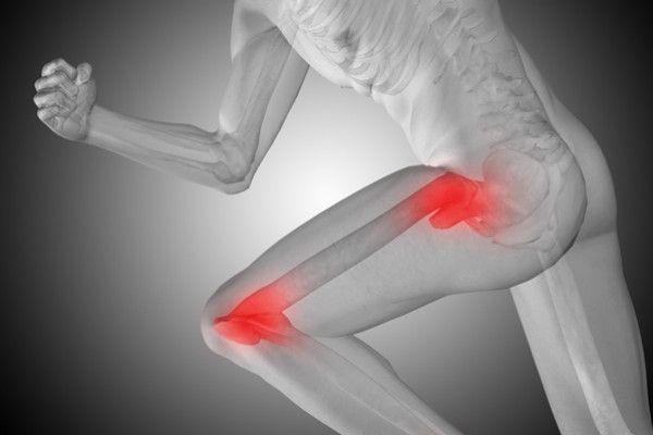artroza genunchiului de la