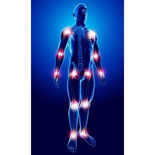 modul de localizare a durerii articulare