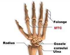 tratament după fractura de încheietura mâinii)
