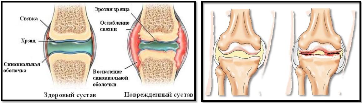 Articulațiile rănesc sportivii