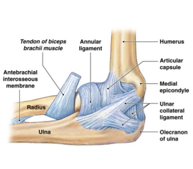 tratament bilateral de displazie de șold artroza genunchiului provoacă 3 grade