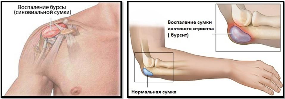 ce fac sportivii când rănesc articulațiile pentru tratamentul articulațiilor artroase