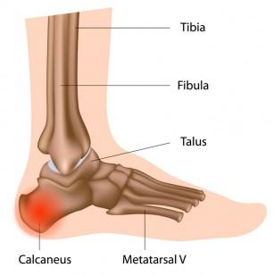 consecințele leziunilor articulației umărului ce să faci cu dureri articulare severe