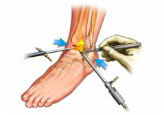 tratament standard pentru artroza gleznei