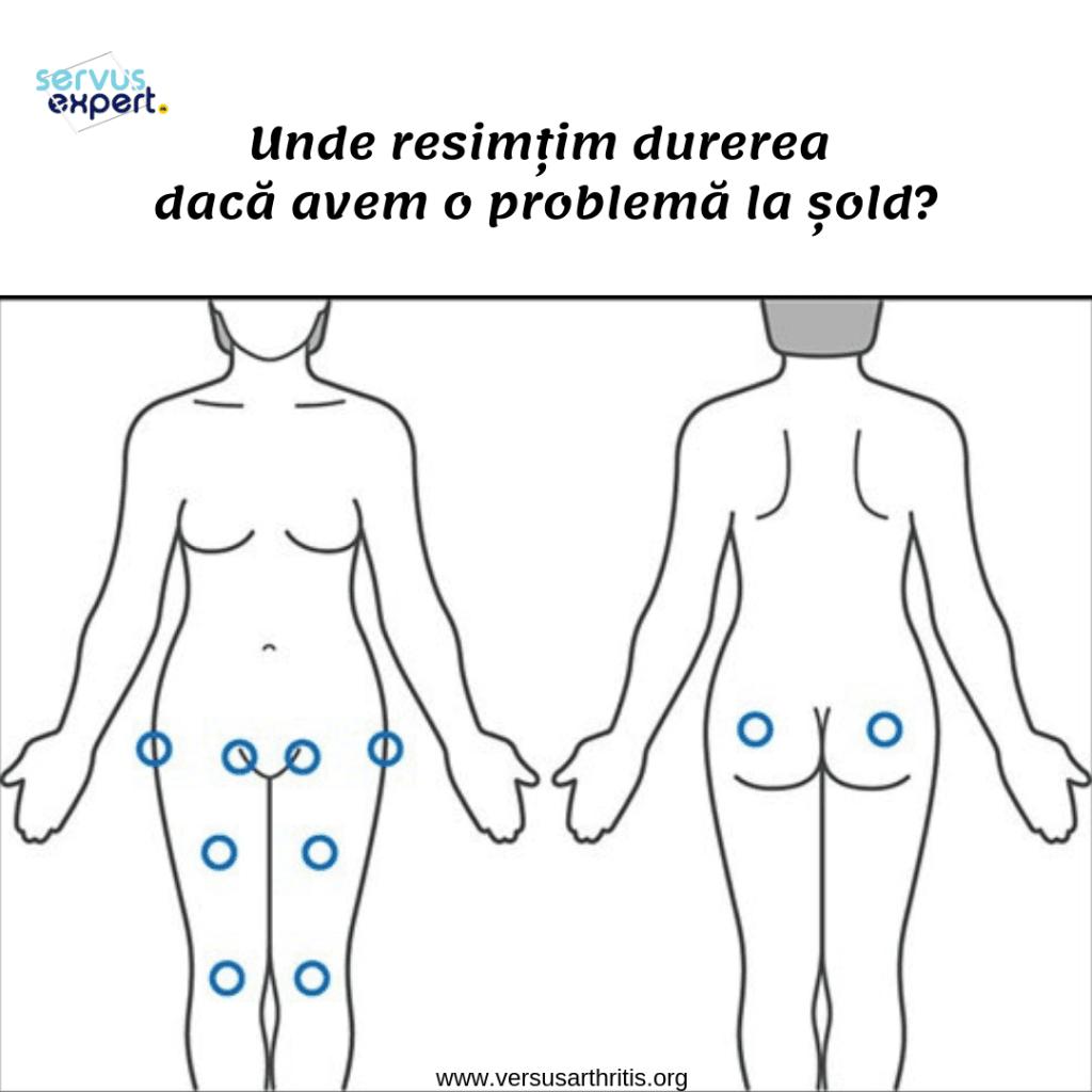 cum să tratezi durerea în mușchiul articulației șoldului)