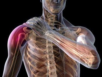 posibile cauze ale durerii de umăr