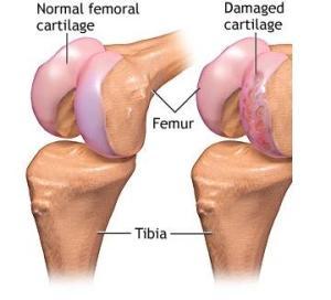 reparația cartilajului cu menisc articulațiile epstein barr doare