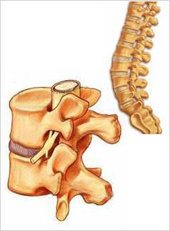 tratamentul coloanei vertebrale și al articulațiilor este încurajator