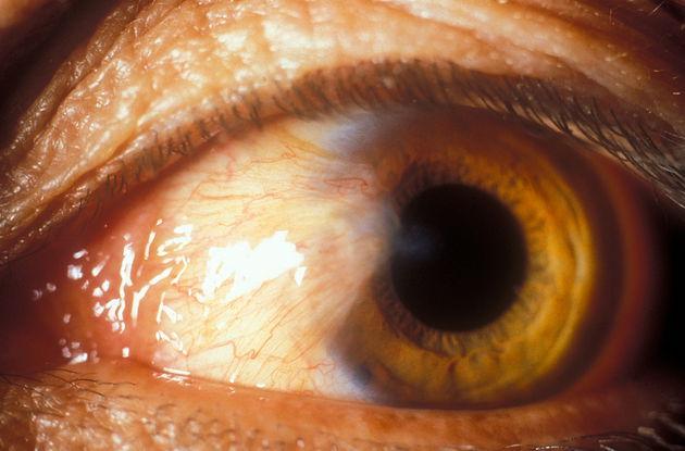 boli ale țesutului conjunctiv și manifestările lor oculare