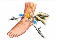 exercițiu de tratament pentru artroza gleznei