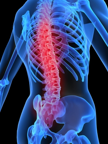 boli degenerative ale articulațiilor și tratamentul coloanei vertebrale)