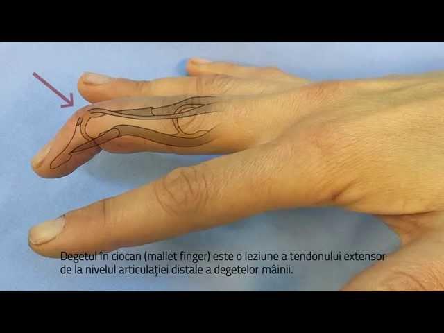 articulație dureroasă a degetului umflat)
