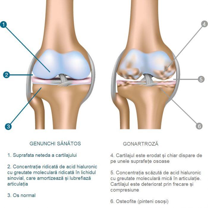 numele bolii în articulația genunchiului)