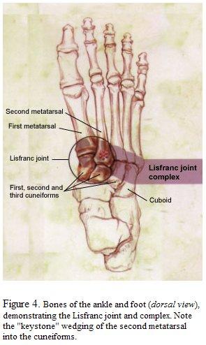 Tratamentul de luxație articulară Lysfranc dureri articulare medicament eficient