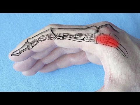 cauze ale inflamației articulare pe degetul mare