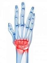 leziune cronică la încheietura mâinii)